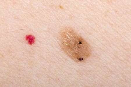Advanced Electrolosis Skin Tag Removal   Rugby